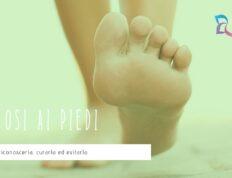 micosi piedi curare
